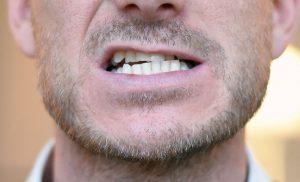 At skære tænder – Forskellige årsager