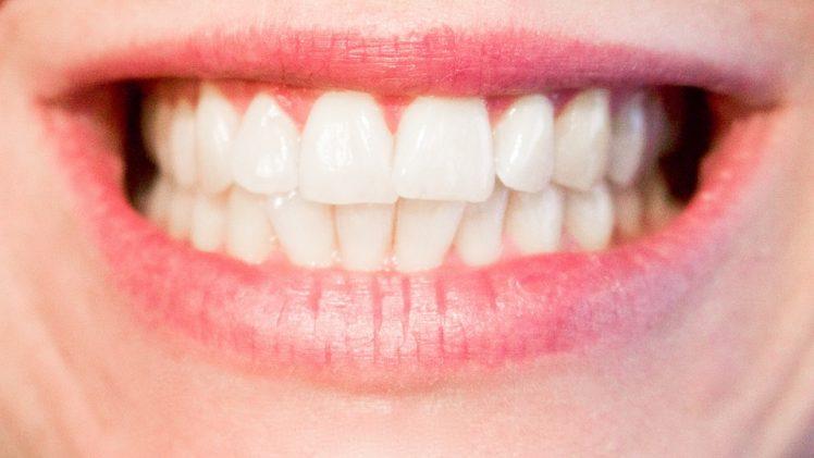 Kvalitets tandretning hos Sanadent